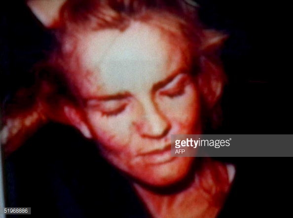 photos of Nicole Brown-Simpson after she was beaten up by O.J. Simpson ... Oj Simpson Crime Scene Photos